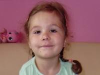 Artrogrypoza - fizjoterapia dziecięca